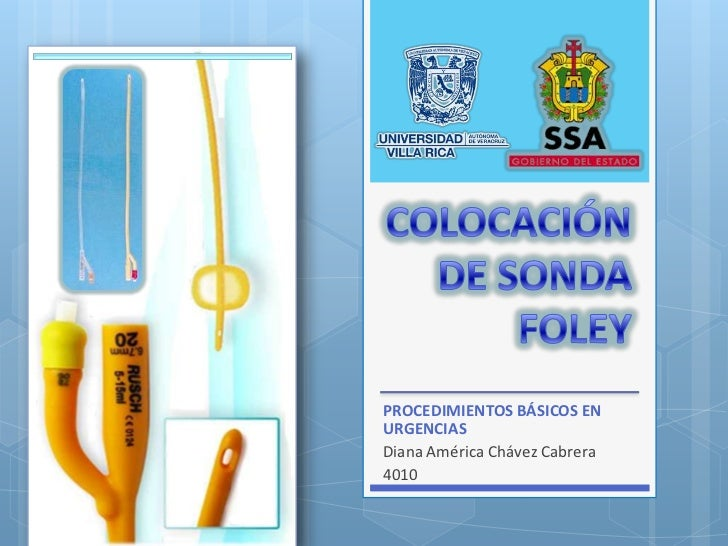 COLOCACIÓN DE SONDA FOLEY<br />PROCEDIMIENTOS BÁSICOS EN URGENCIAS<br />Diana América Chávez Cabrera<br />4010<br />