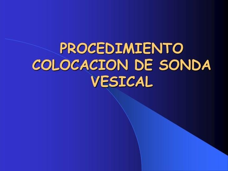PROCEDIMIENTO  COLOCACION DE SONDA VESICAL <br />