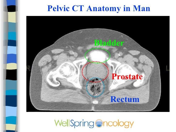 Perirectal Lymph Nodes Anatomy 867186 Togelmayafo