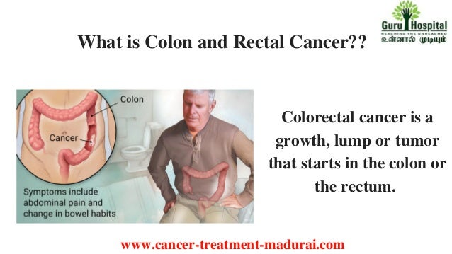 Colon And Rectal Cancer Treatment In Madurai Cancer Treatment In Ta