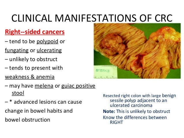 Colon Cancer Lecture