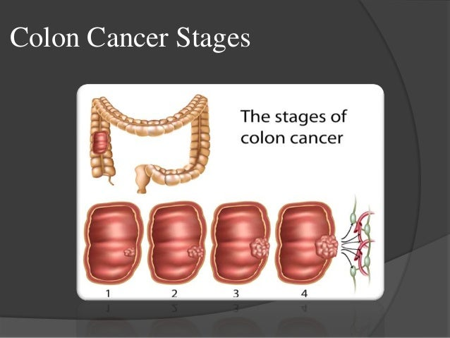 Colon Cancer 7 Lymph Nodes