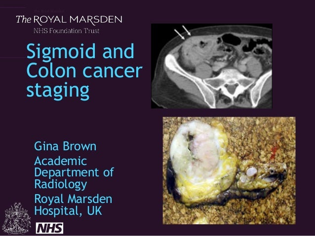 The Royal Marsden Sigmoid and Colon cancer staging Gina Brown Academic Department of Radiology Royal Marsden Hospital, UK