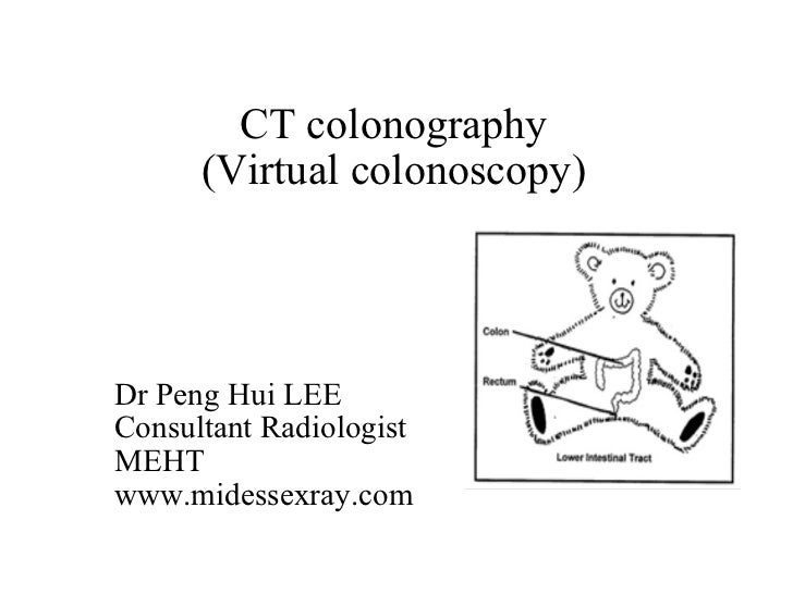 CT colonography       (Virtual colonoscopy)     Dr Peng Hui LEE Consultant Radiologist MEHT www.midessexray.com