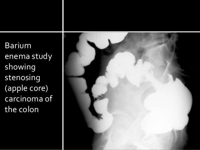 Barium Enema With Air Contrast - Cedars-Sinai