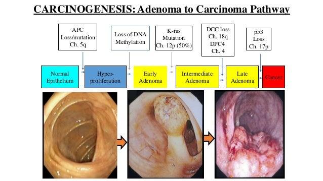 Colorectal carcinoma anatomy to management