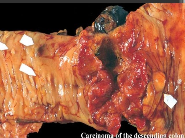 Colorectal Carcinoma Recent Advances