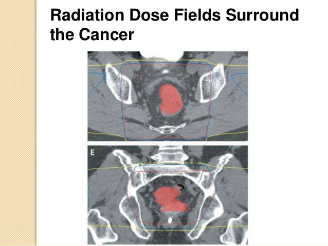 Radiation For Colon And Rectal Cancer