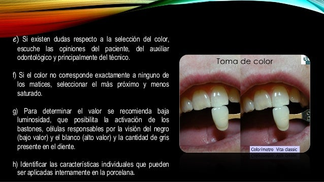 Color en protesis fija neyra i Definicion de ceramica