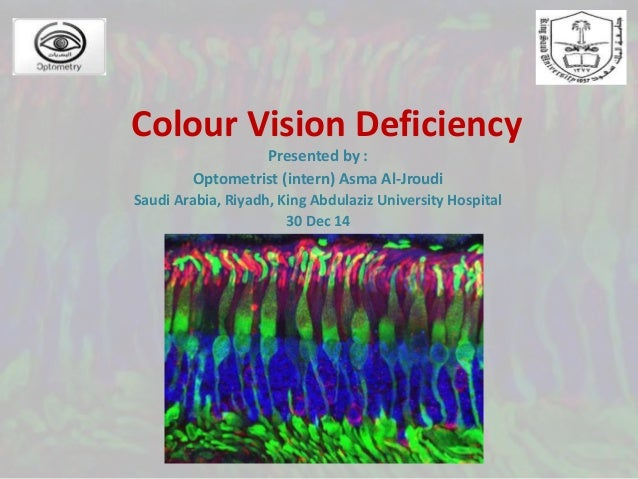 Color Vision Deficiency And Ishihara's Test
