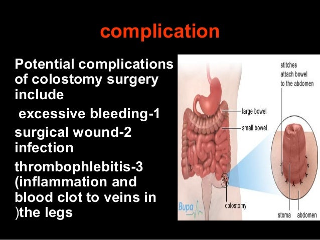 how to change a colostomy bag slideshare