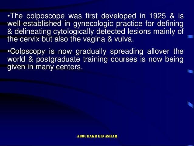 Colposcopy  Slide 2