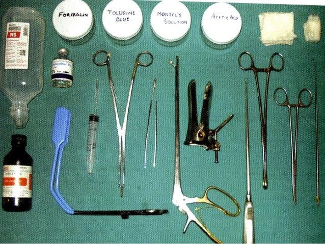 Colposcopy today practical approach dr sharda jain for Punch list procedure