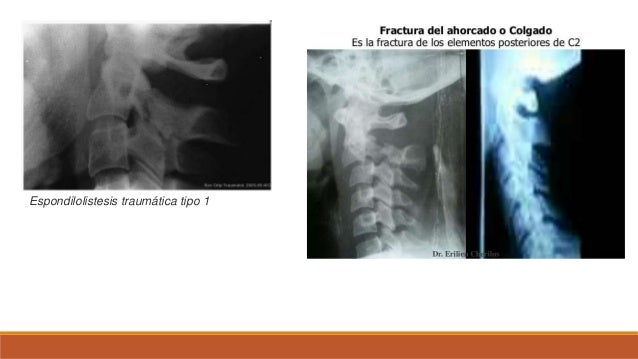 Las conferencias por lfk a la osteocondrosis