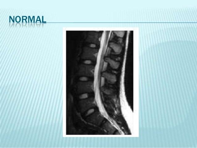 Las hernias protruzii a sheynom la osteocondrosis el tratamiento