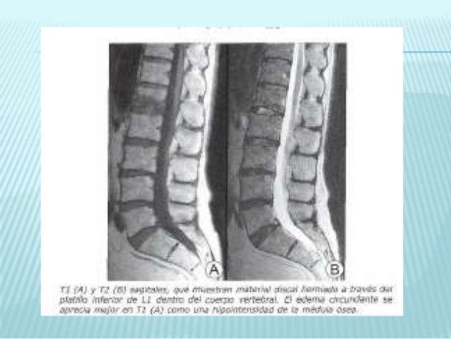 La osteocondrosis del departamento lumbar no pasa el dolor