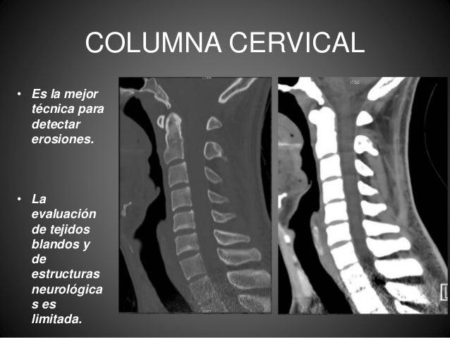 El dolor en sheynom el departamento de la columna vertebral y la náusea