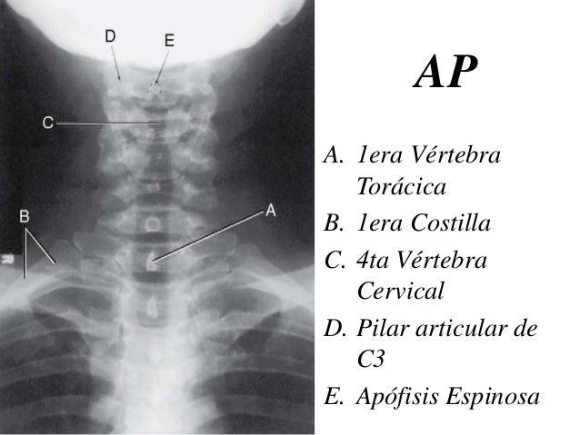 Anatomía Radiológica de la columna vertebral