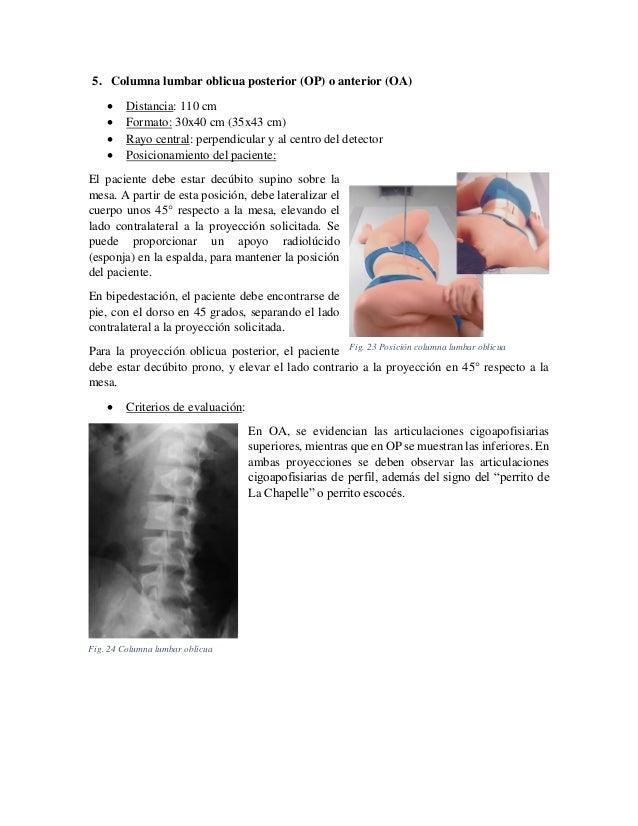Posicionamiento de columna vertebral total y lumbar