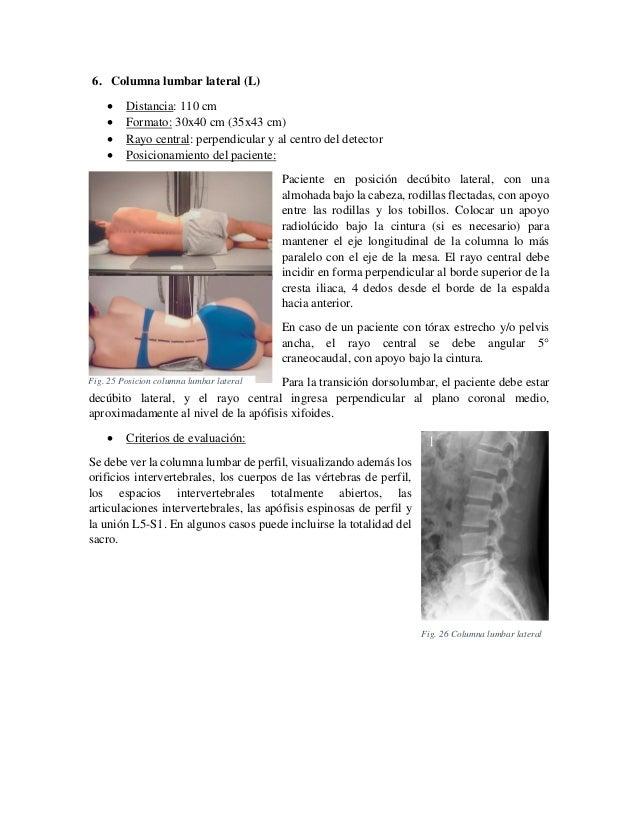 6. Columna lumbar lateral (L)      Distancia: 110 cm Formato: 30x40 cm (35x43 cm) Rayo central: perpendicular y al cen...