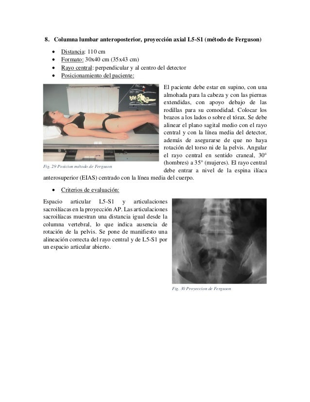 8. Columna lumbar anteroposterior, proyección axial L5-S1 (método de Ferguson)      Distancia: 110 cm Formato: 30x40 c...