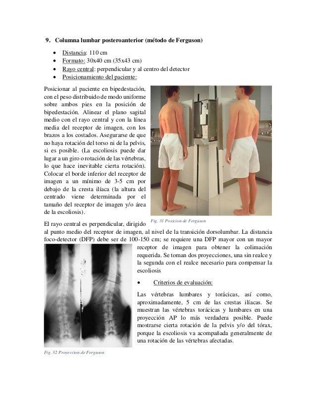 9. Columna lumbar posteroanterior (método de Ferguson)      Distancia: 110 cm Formato: 30x40 cm (35x43 cm) Rayo centra...