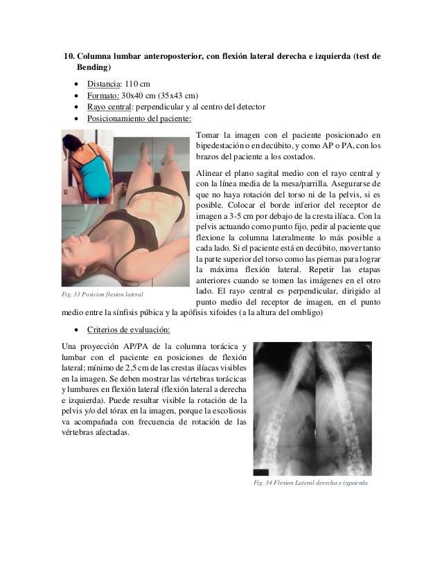 10. Columna lumbar anteroposterior, con flexión lateral derecha e izquierda (test de Bending)      Distancia: 110 cm F...