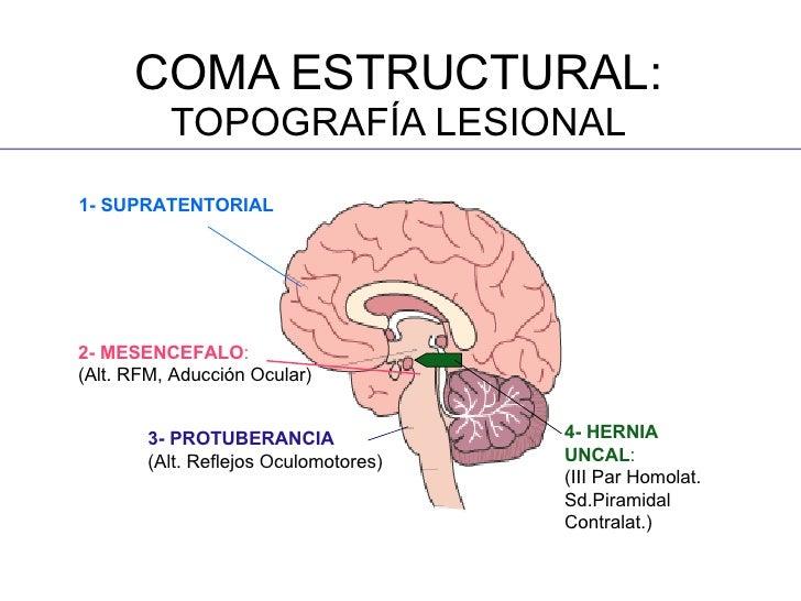Acoustic neuroma MedlinePlus Medical Encyclopedia