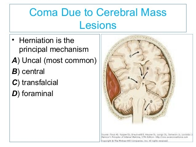 coma due to cerebral mass lesions herniation