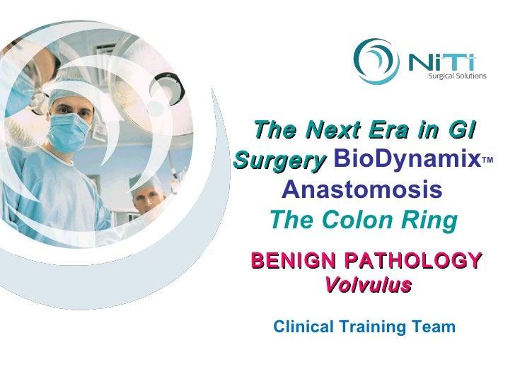 The Next Era in GI Surgery  BioDynamix TM Anastomosis The Colon Ring Clinical Training Team BENIGN PATHOLOGY Volvulus