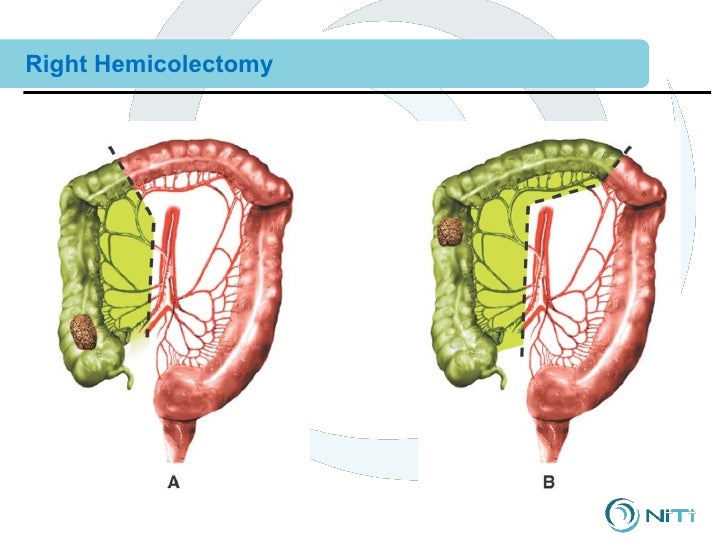 Right hemicolectomy anatomy 9939422 - follow4more.info