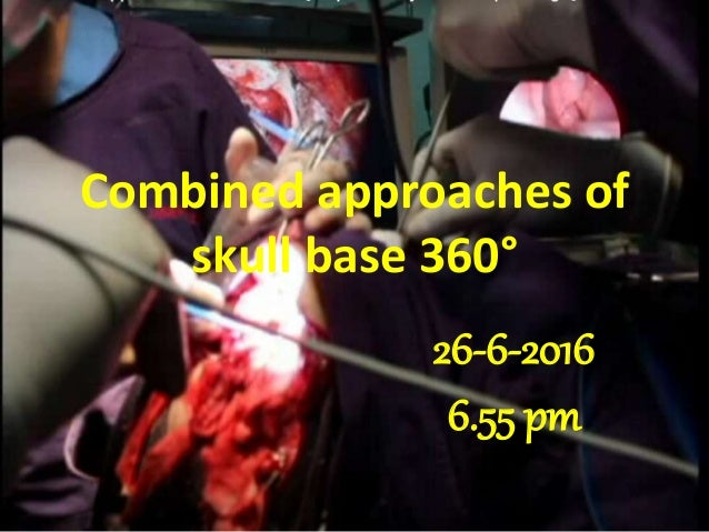 Combined approaches of skull base 360° 26-6-2016 6.55 pm