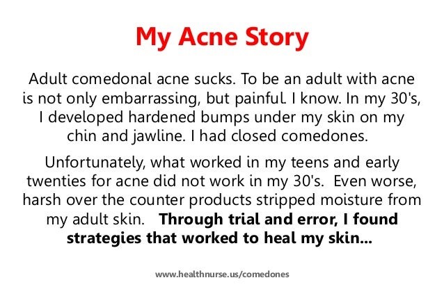 Comedonal Acne Cure In 10 Easy Steps