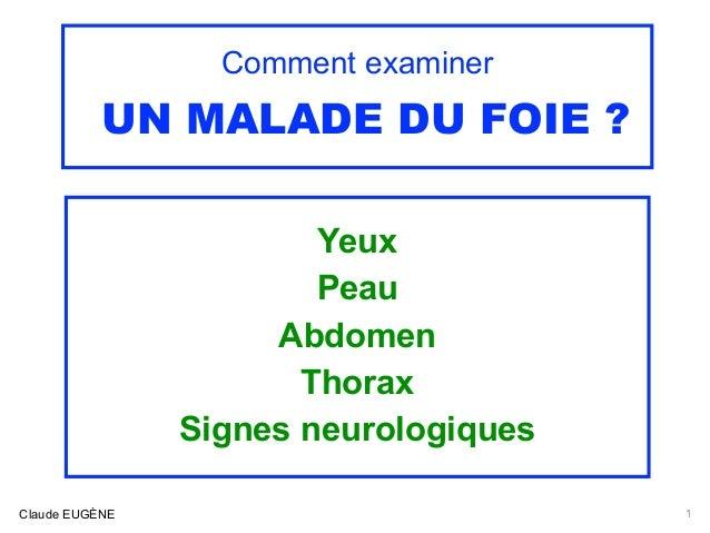 Comment examiner UN MALADE DU FOIE ? Yeux Peau Abdomen Thorax Signes neurologiques 1Claude EUGÈNE