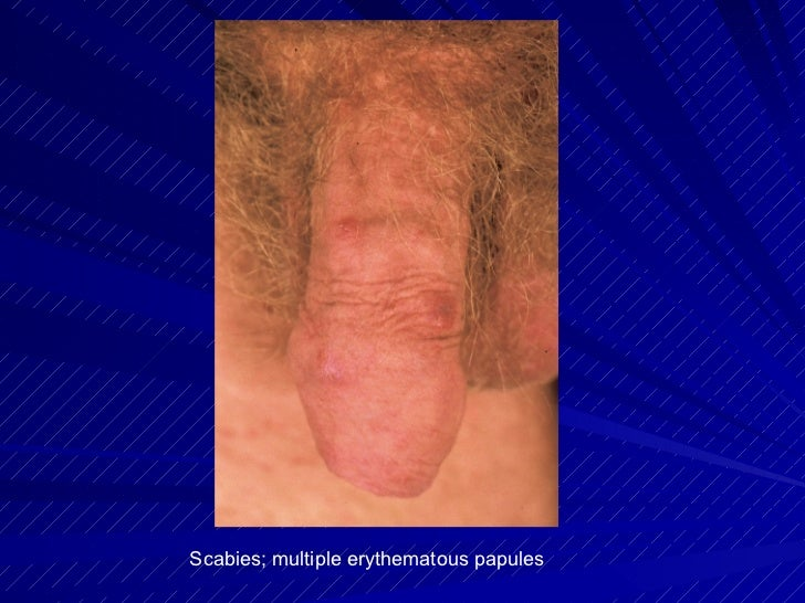Male Genital Problems, Injuries, Infections, Rashes, and More