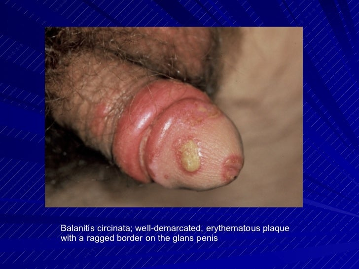 early sighns of genital herpes