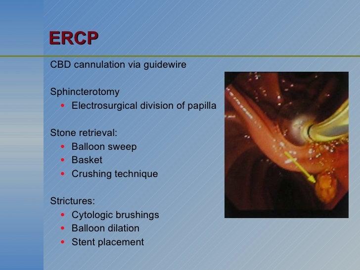 ERCP <ul><li>CBD cannulation via guidewire </li></ul><ul><li>Sphincterotomy </li></ul><ul><ul><li>Electrosurgical division...