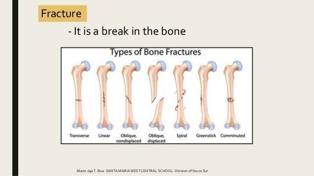common bone and muscle injuries. Black Bedroom Furniture Sets. Home Design Ideas
