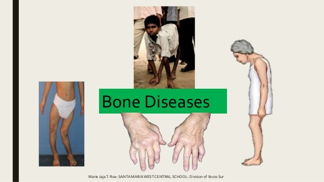 Common Bone and Muscle Injuries