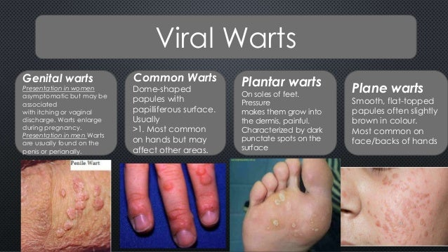 itchy genital warts during pregnancy
