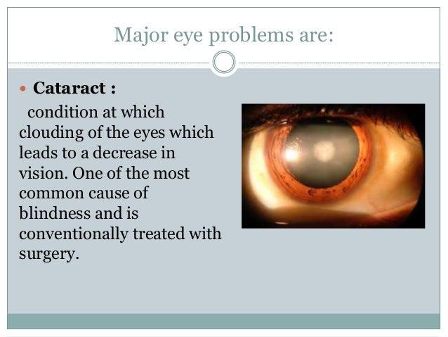 3 Major Eye Problems