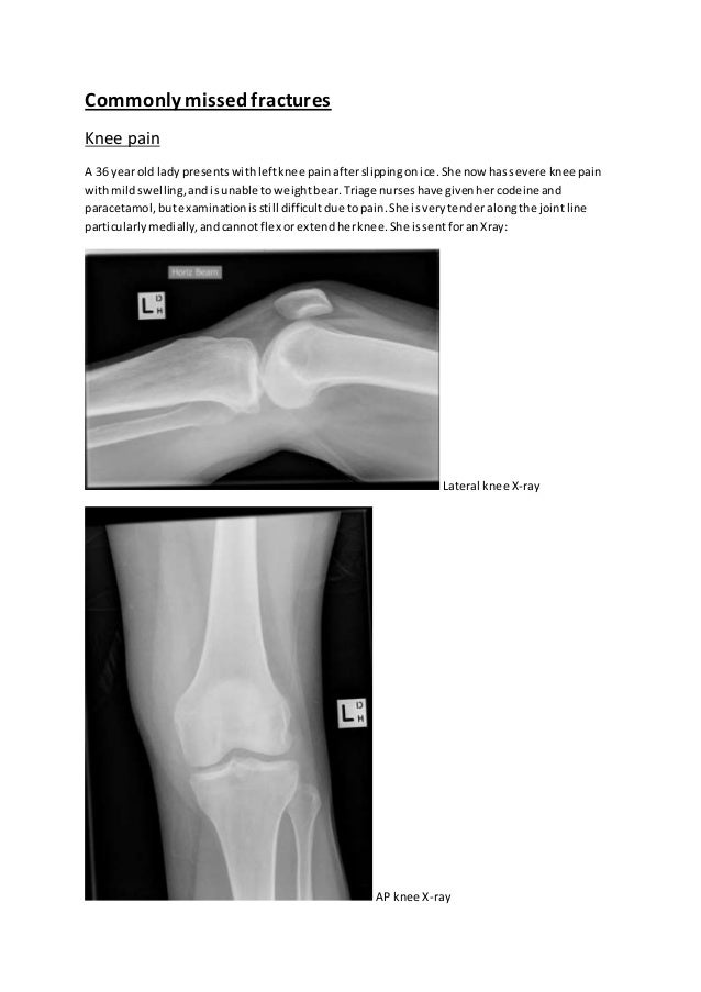Commonlymissed fractures Knee pain A 36 yearold lady presentswithleftknee painafterslippingonice.She now hassevere knee pa...