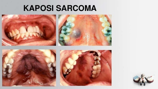 Common oral lesions2 Kaposi Sarcoma Mouth