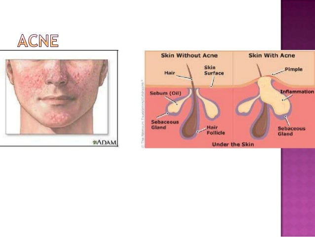 Common Skin Diseases During Adolescence