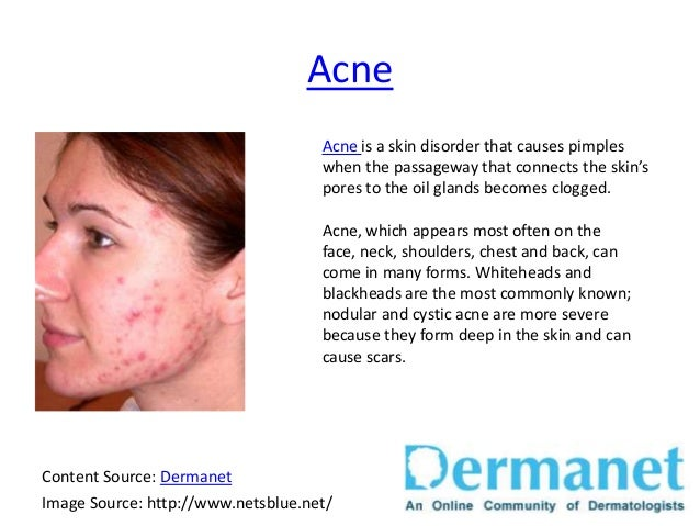 Common Skin Diseases Brought To You By Dermanet