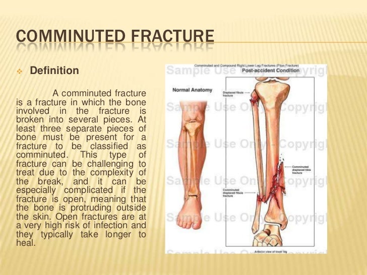 common types of fracture, Human Body