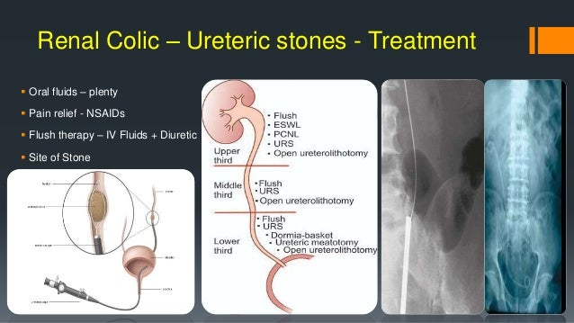 Common Urological Emergencies
