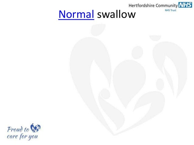 Communication And Swallowing Impairment In Ms A View From Everyday