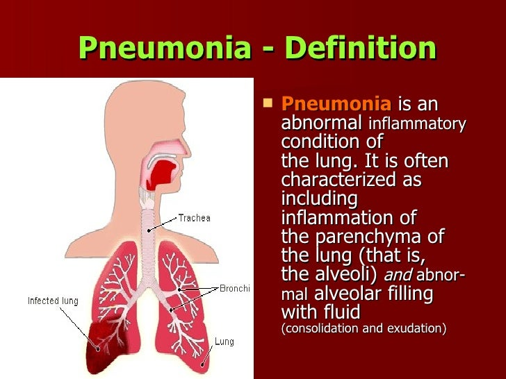 community acquired pneumonia, Human Body