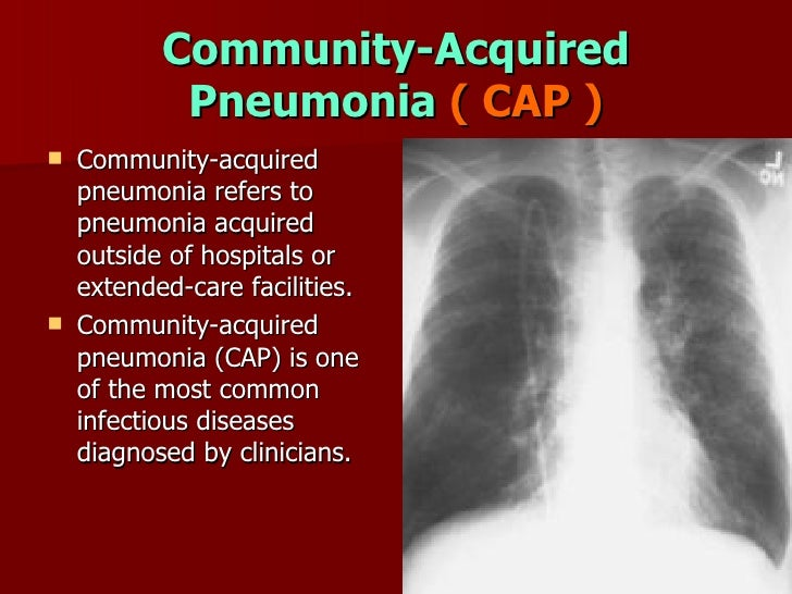 community acquired pneumonia What is pneumonia pneumonia is a serious infection of the lungs community-acquired pneumonia is a type of pneumonia that you catch outside of.
